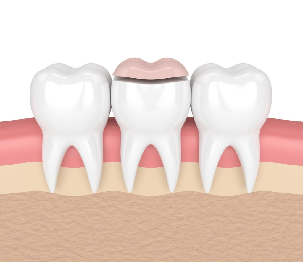 Illustration of a row of teeth in a gum line with a dental onlay on the middle tooth